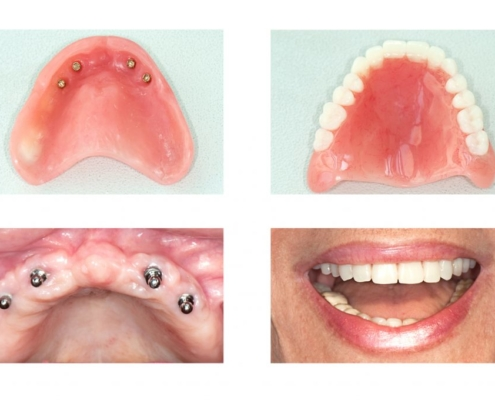 Tweedmouth Dental Clinic impant dentures